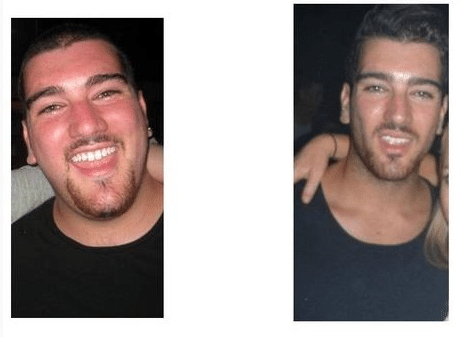 losing fat face change (1)